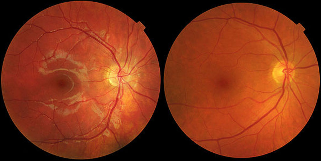 age-related-macular-degeneration-the-most-comprehensive-guide-about-amd