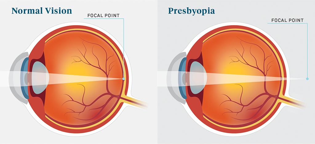 presbyopia-a-common-eye-condition-related-to-aging